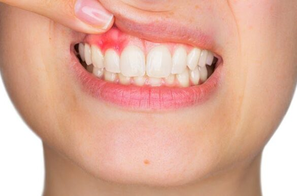 Bleeding Gums and How it Can be Treated