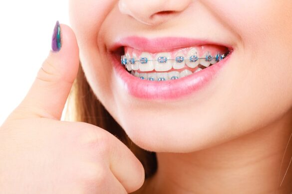 SMILE BEAUTIFULLY EVEN WITH BRACES ON